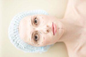 Plastische Chirurgie